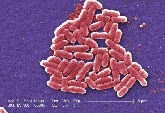 Колония кишечной палочки. Фото CDC/Janice Haney Carr