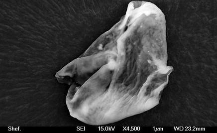 Найденные микроорганизмы под телескопом.